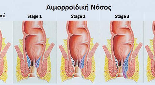 Στάδια αιμορροϊδικής νόσου - Αιμορροϊδεκτομή