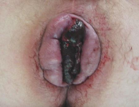 Θρόμβωση αιμορροϊδων - Αιμορροϊδεκτομή