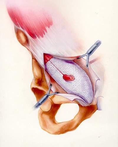 Χειρουργική της βουβωνοκήλης